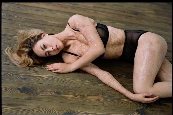 """""""THE SKIN PROJECT"""": un progetto per aiutare le donne ad accettare il proprio corpo"""